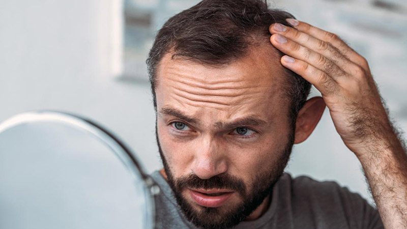 The nutrient deficiency that could be causing your hair loss